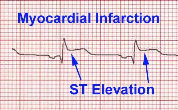 clinical juniorcom ecg ekg interpretation basics how to