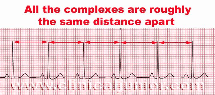Reading ECG Heart Rate