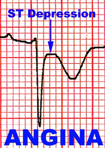 depression and myocardial infarction relationship between heart mind